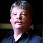 Simon Weston, OBE